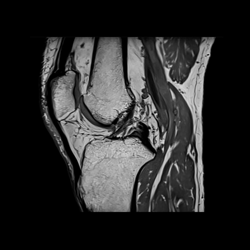 rezonans magnetyczny kolana warszawa