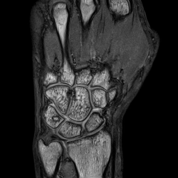 rezonans magnetyczny warszawa żoliborz, mri nadgarstka