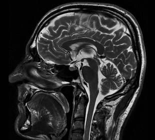 rezonans magnetyczny głowy, mri przysadki