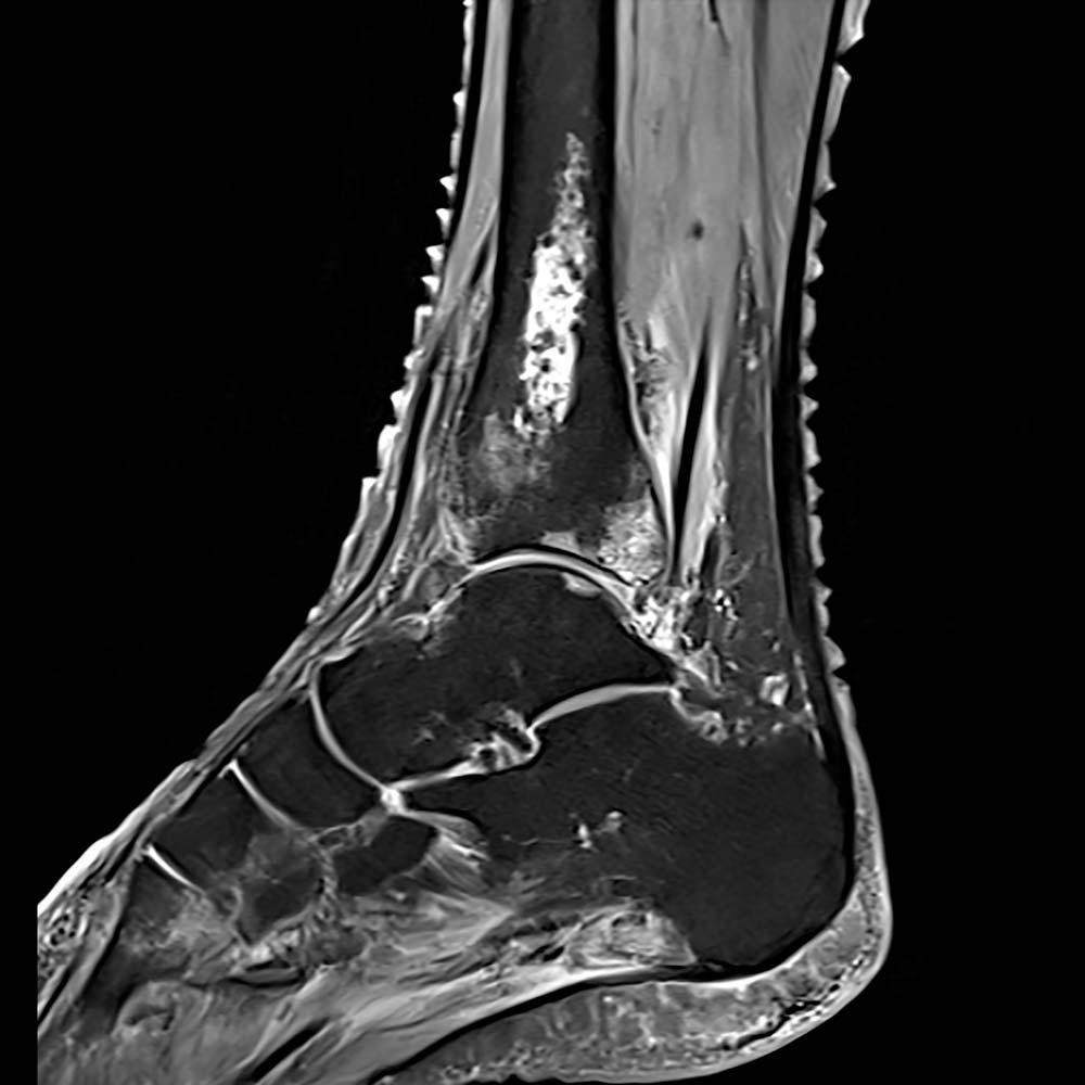 rezonans magnetyczny bielany, staw skokowy