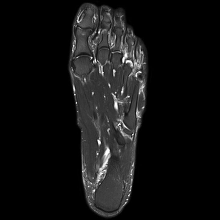 rezonans magnetyczny bemowo, stopa