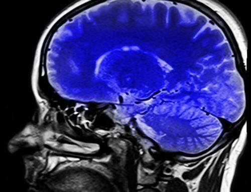 Rezonans magnetyczny bez skierowania – gdzie wykonać i na co zwrócić uwagę?