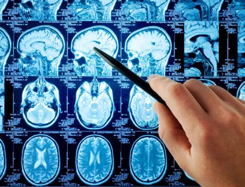 Migreny a rezonans magnetyczny głowy