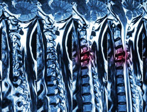 Obrazujemy nasz kręgosłup – najczęstsze problemy, z jakimi możemy się spotkać przy bólach kręgosłupa